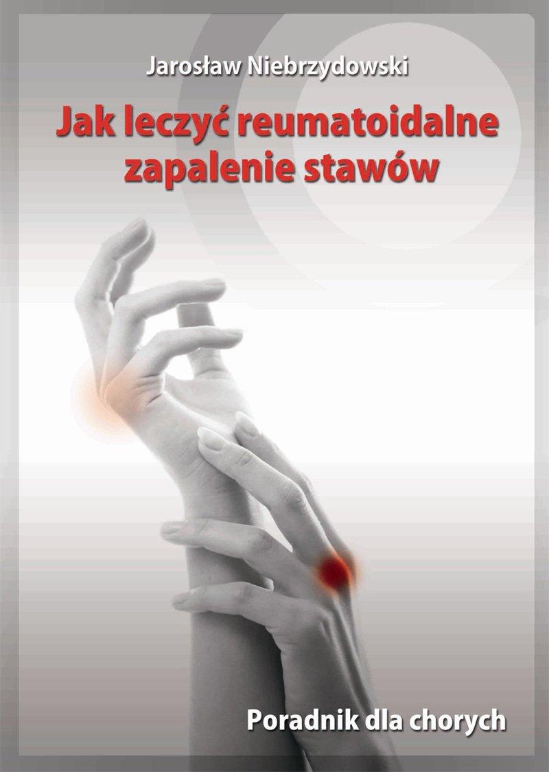 Jak leczyć reumatoidalne zapalenie stawów. Poradnik dla chorych - Ebook (Książka na Kindle) do pobrania w formacie MOBI