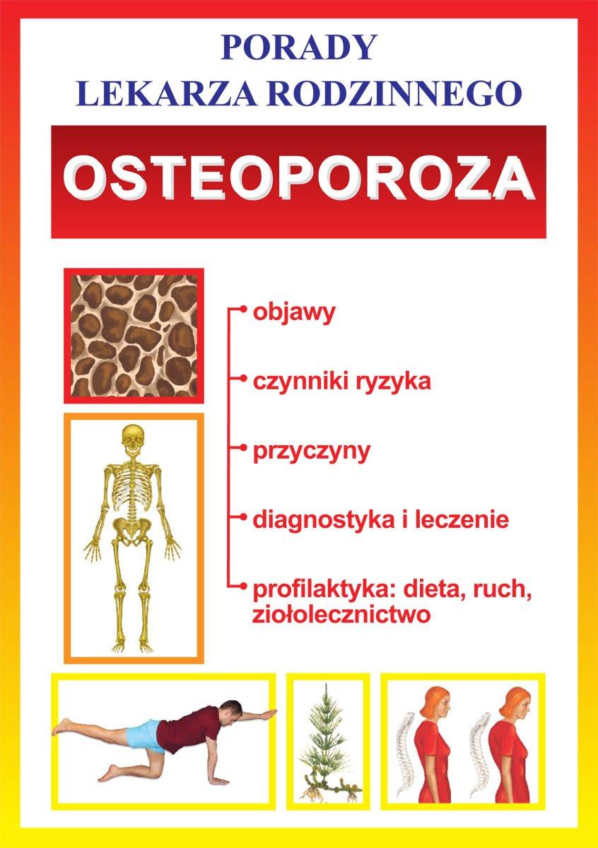 Osteoporoza. Porady lekarza rodzinnego - Ebook (Książka PDF) do pobrania w formacie PDF