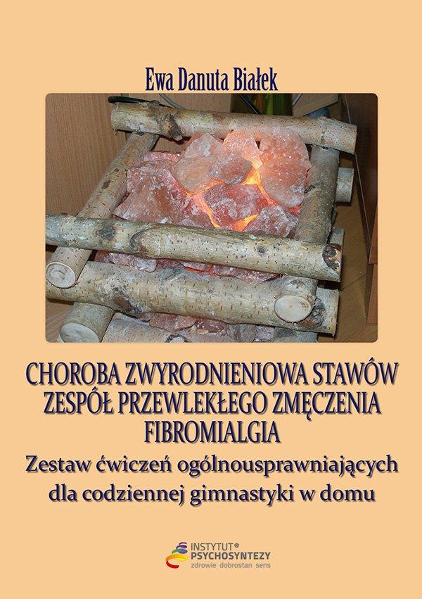 Choroba zwyrodnieniowa stawów - Ebook (Książka EPUB) do pobrania w formacie EPUB
