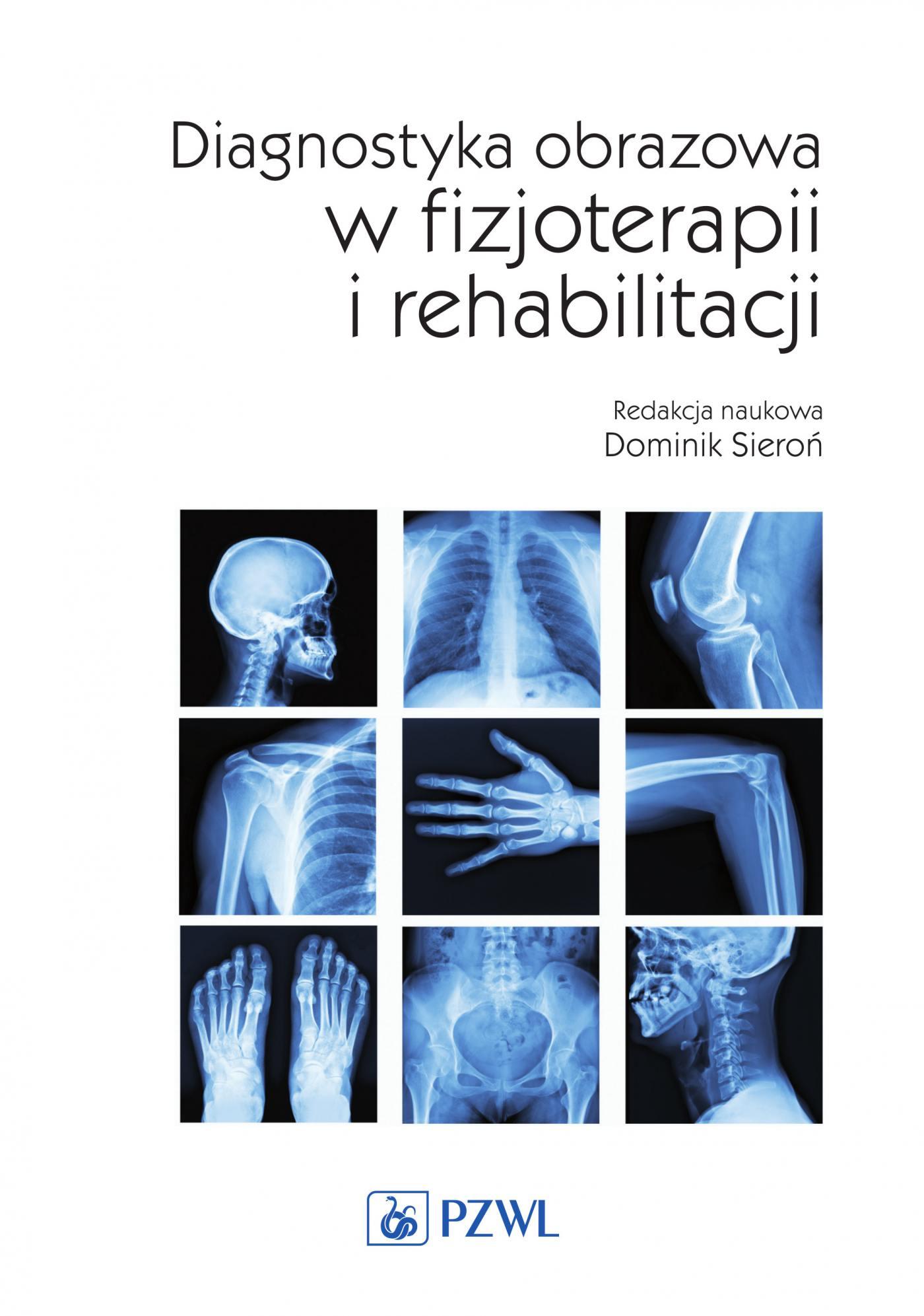 Diagnostyka obrazowa w fizjoterapii i rehabilitacji - Ebook (Książka na Kindle) do pobrania w formacie MOBI