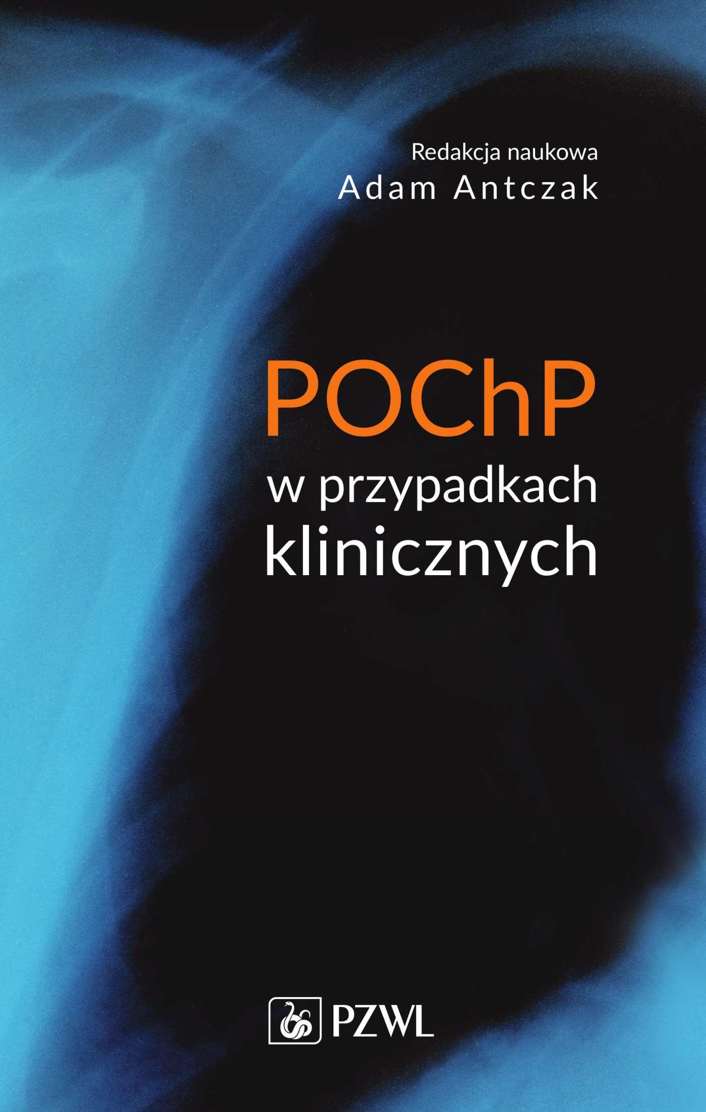 POChP w przypadkach klinicznych - Ebook (Książka na Kindle) do pobrania w formacie MOBI