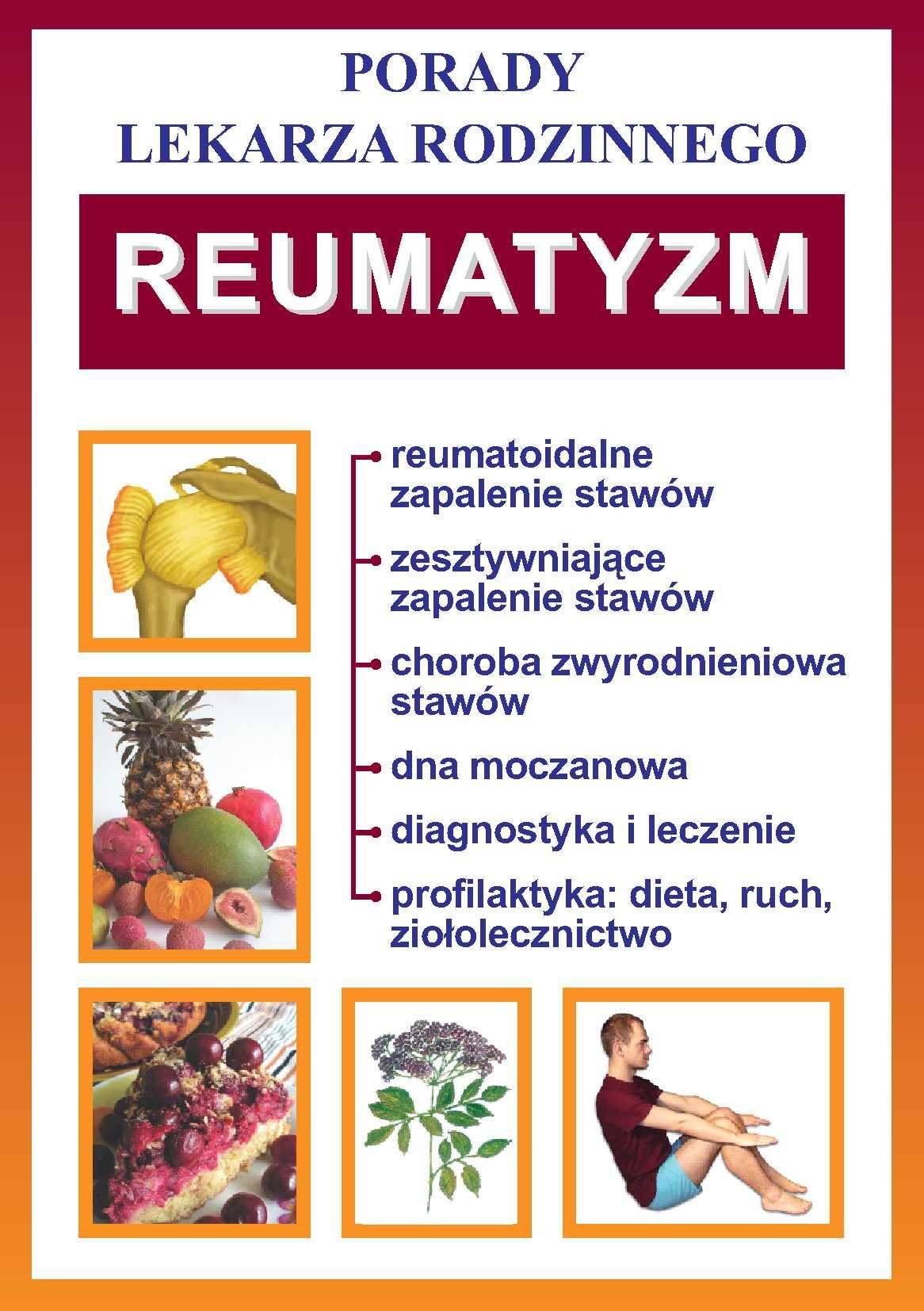 Reumatyzm. Porady lekarza rodzinnego - Ebook (Książka PDF) do pobrania w formacie PDF