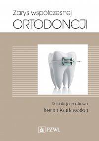 Zarys współczesnej ortodoncji - Irena Karłowska - ebook