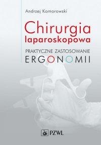 Chirurgia laparoskopowa. Praktyczne zastosowanie ergonomii