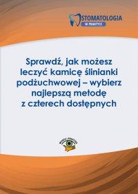 Sprawdź, jak możesz leczyć kamicę ślinianki podżuchwowej – wybierz najlepszą metodę z czterech dostępnych - Michał Wojtkiewicz - ebook
