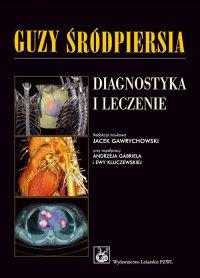 Guzy śródpiersia. Diagnostyka i leczenie - Jacek Gawrychowski - ebook