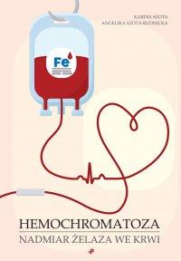 Hemochromatoza. Nadmiar żelaza we krwi - Karina Szota - ebook